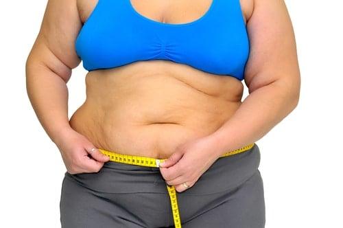 La Epidemia de Obesidad en Argentina